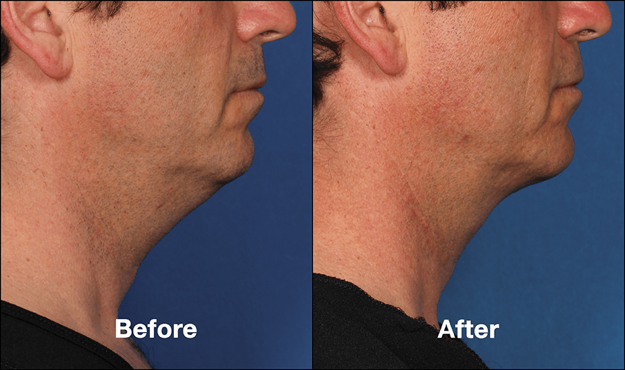 Kybella® Injection for Submental Fullness