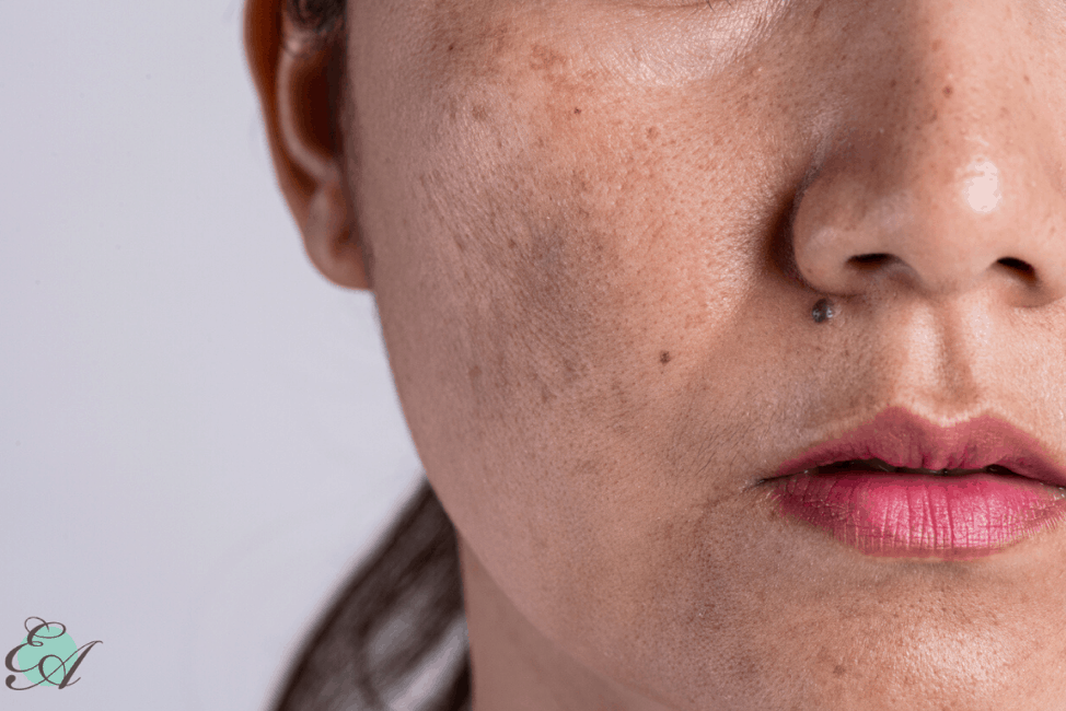 Best Treatment for Melasma on the Face