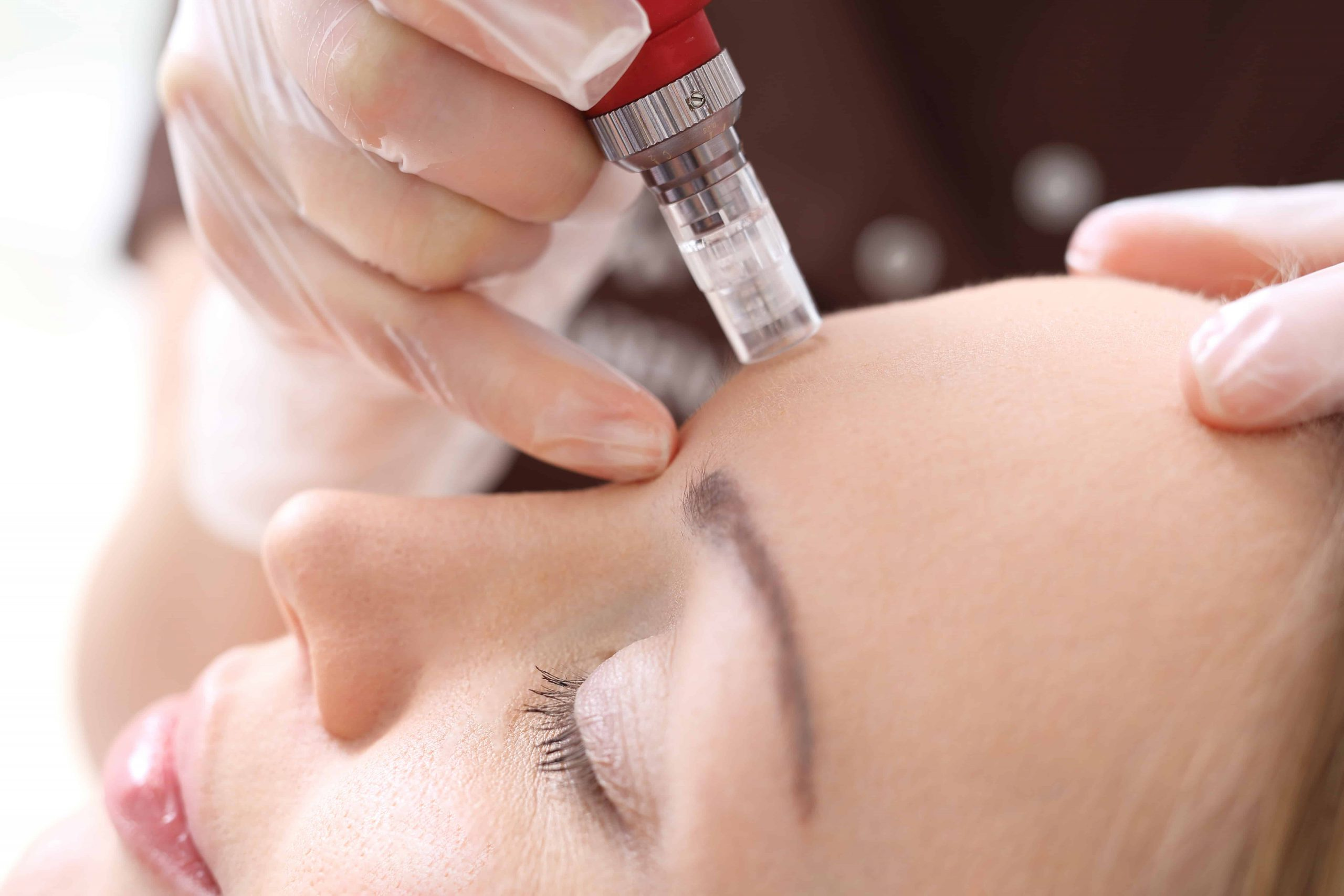 Traditional Micro-Needling vs RF Micro-Needling vs At-Home Micro-Needling