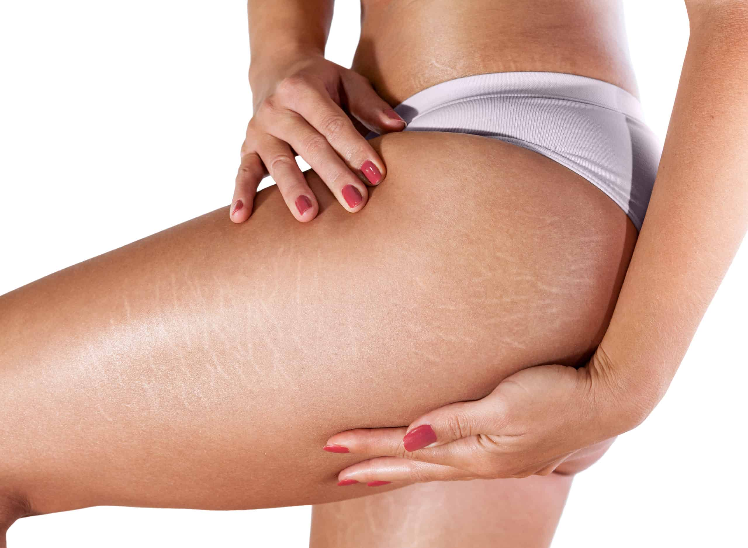 Using RF Microneedling & Fractional Laser Combo Treatment for Stretch Marks. Does it work?