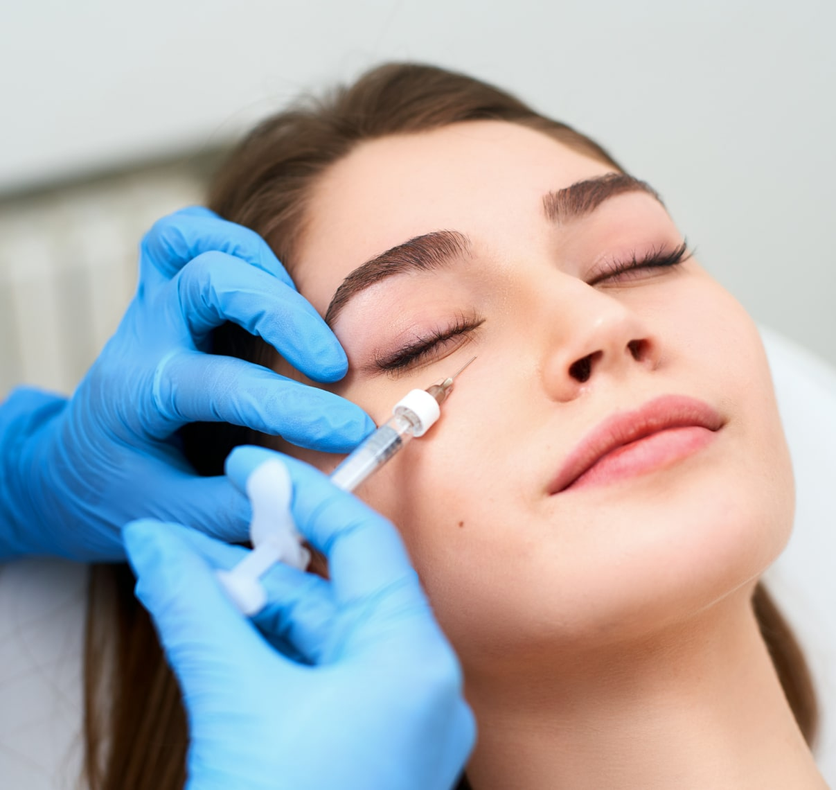 Dermal Fillers for Dark Eye Circles