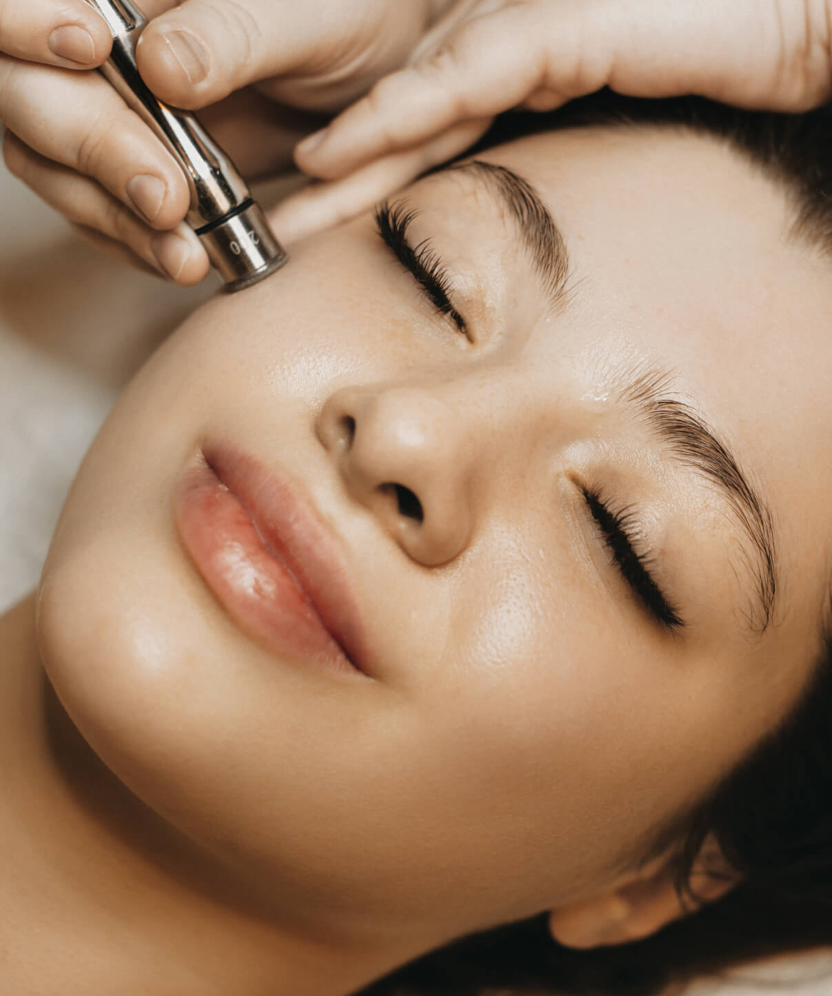 Your Experience with RF Microneedling
