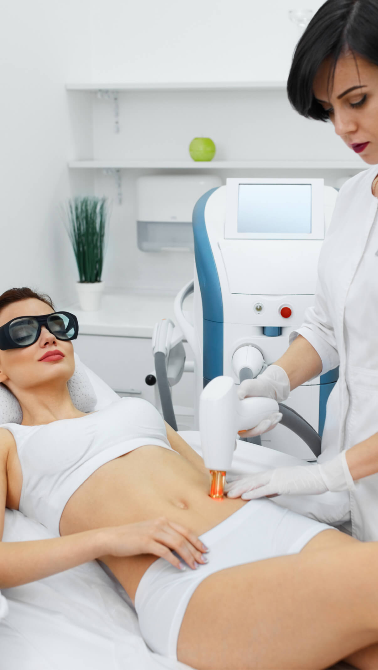 RF Microneedling for Stretch Marks