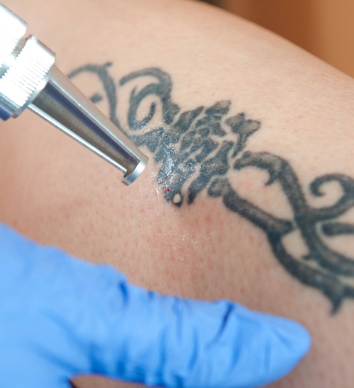 What is Laser Tattoo Removal?