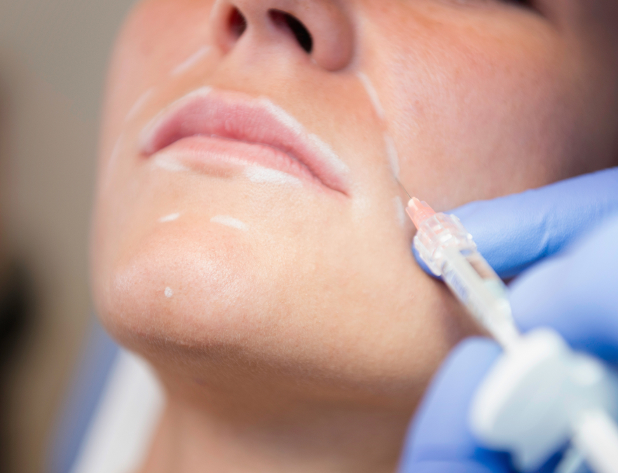 Restylane® Injections