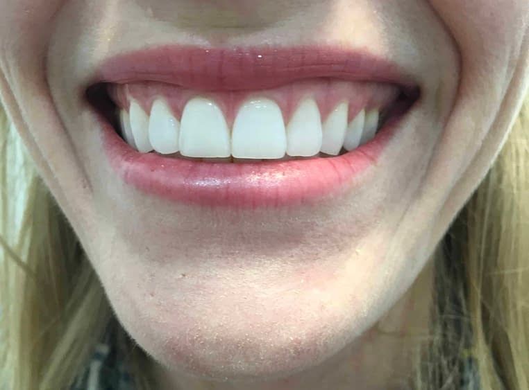 Correction of Excessive Gingival Display