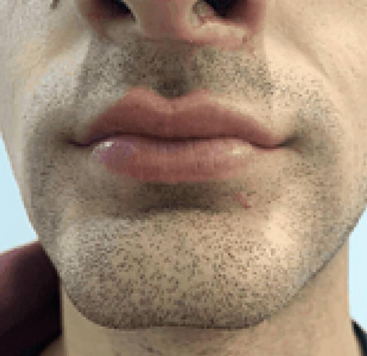 Lip Reshaping