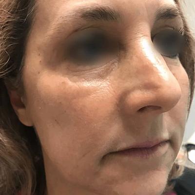 Midface Rejuvenation