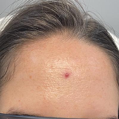 Cherry Angioma Treatment