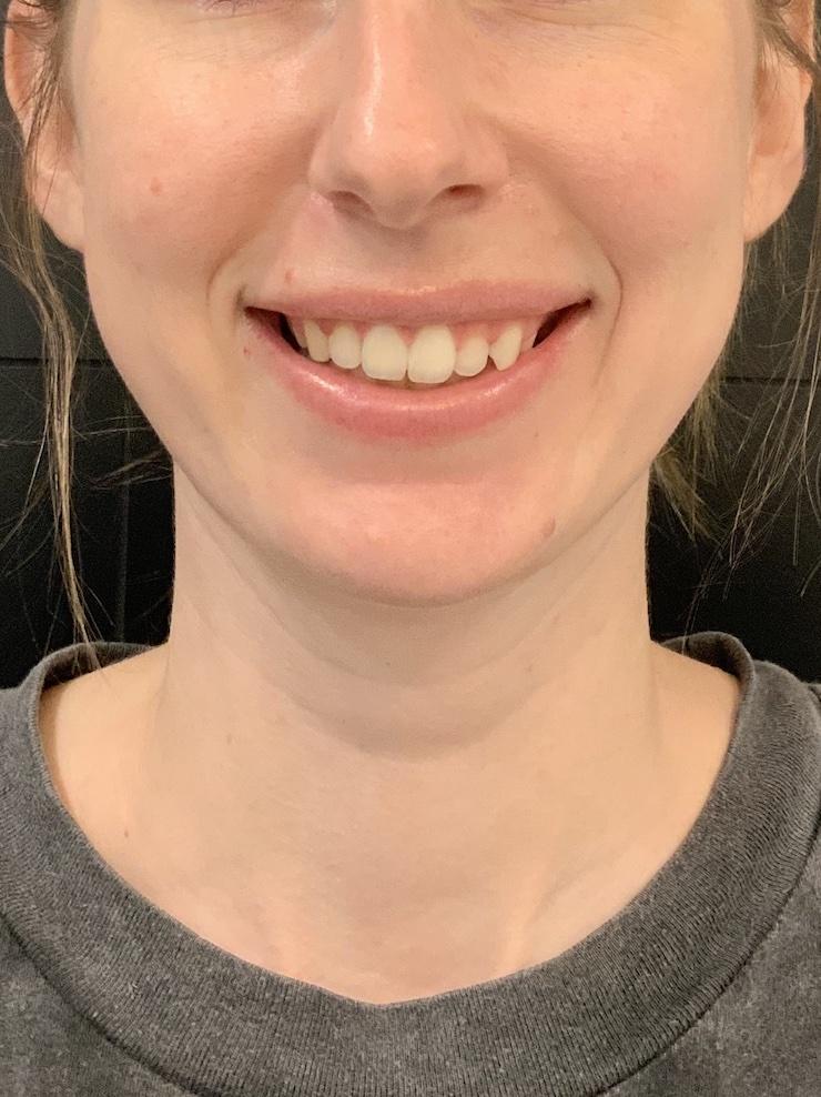 Gummy Smile Treatment