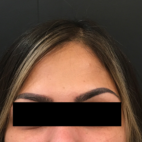 Dynamic Forehead Wrinkle Treatment