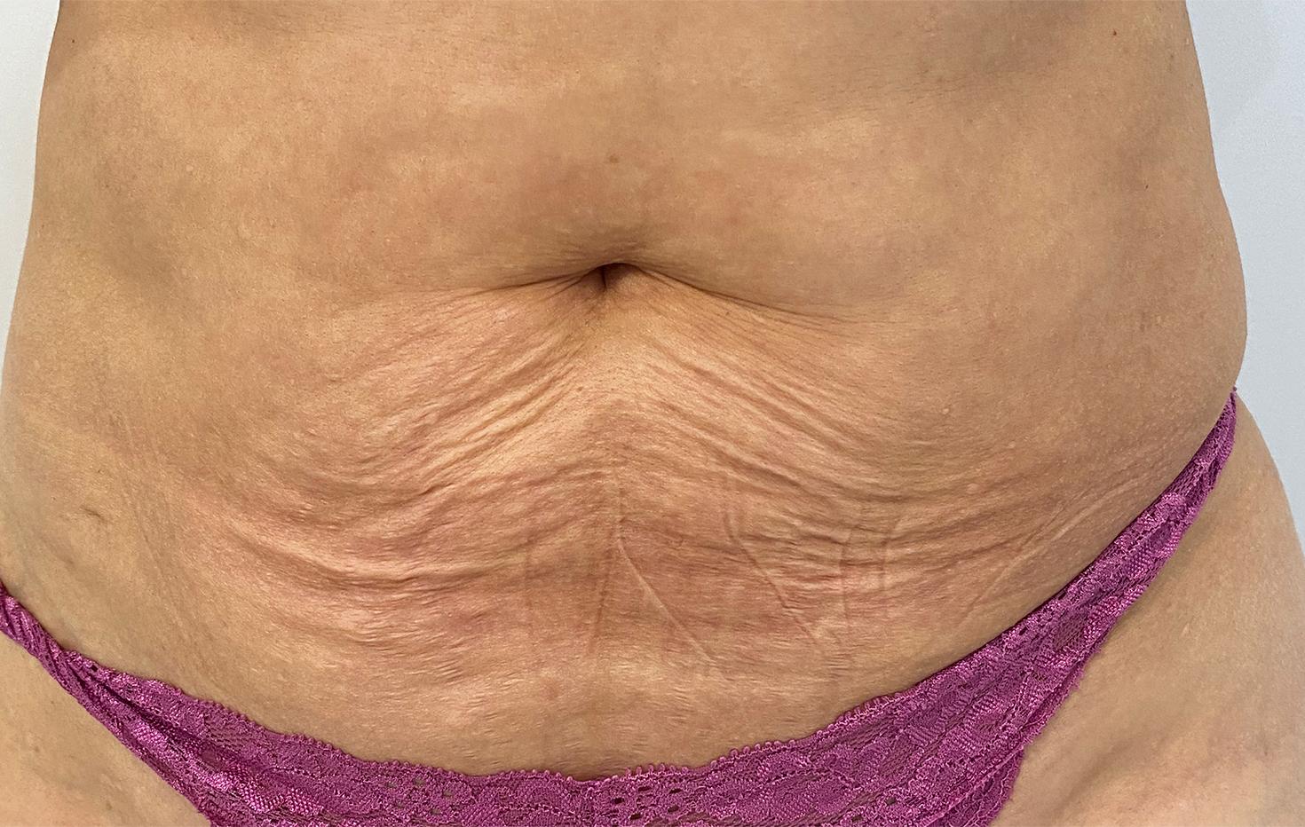 Skin Laxity Treatment