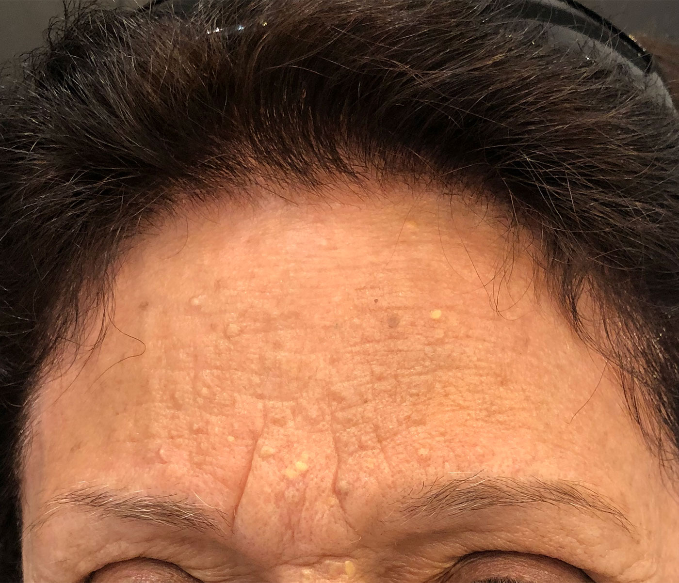 Skin Lesions Removal