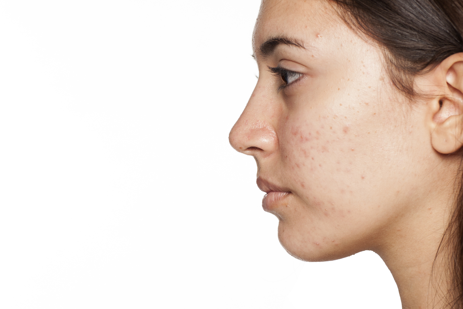 Treating PIH Caused By Acne