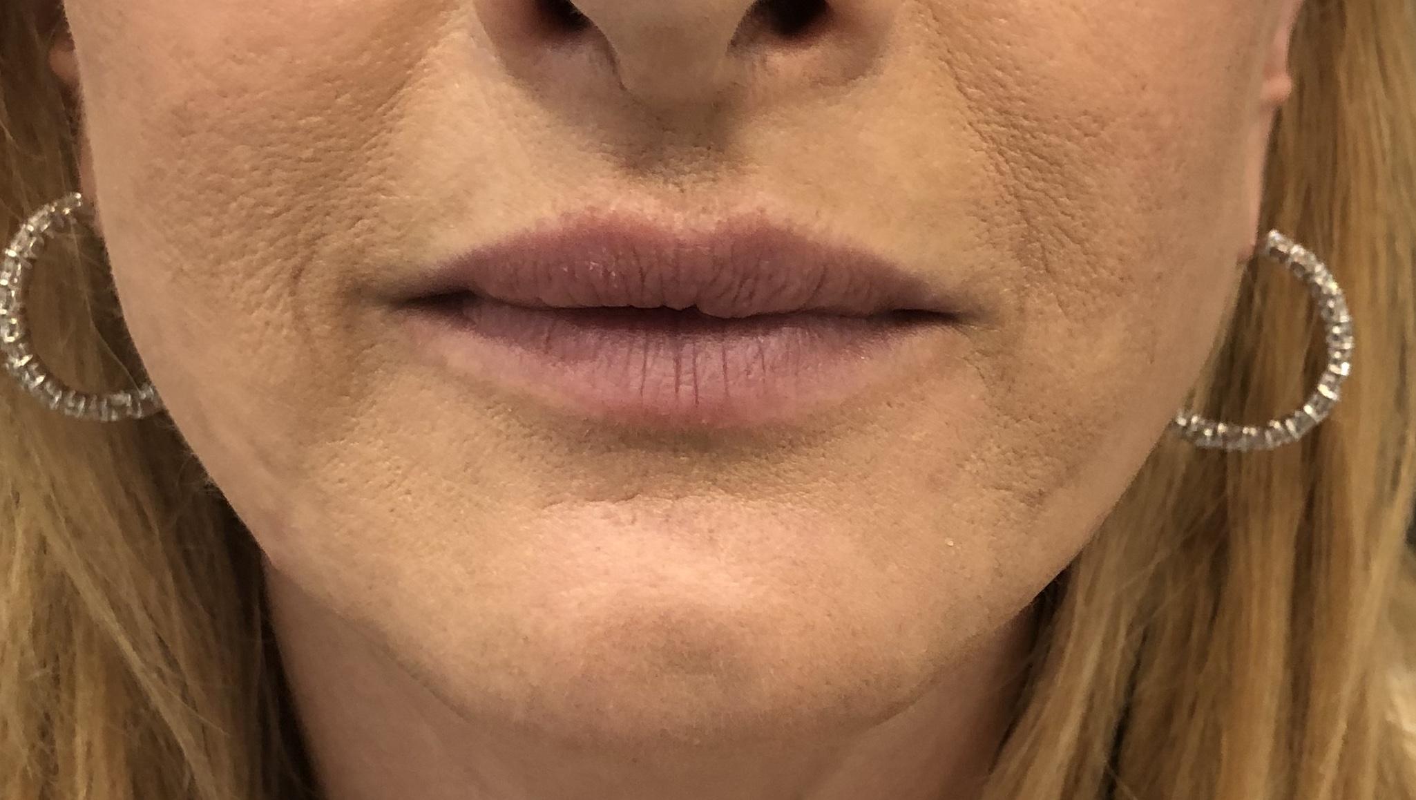 Perioral Rejuvenation and Lip Enhancement
